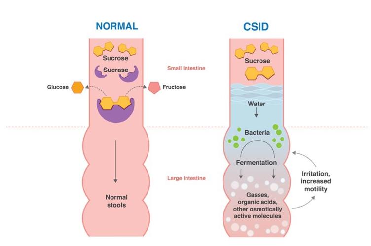 CSID-Intestine.png